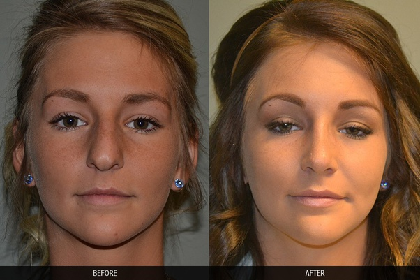 Who Is The Best Rhinoplasty Surgeon In India Quora