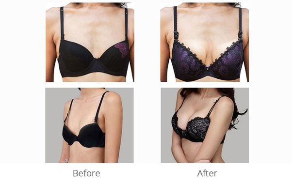 Breast looking natural fake implants vs Can Breast