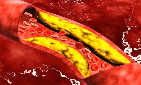 ¿puedes hacer dieta cetosis con alto colesterol?
