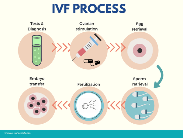 How long is the process of IVF? - Quora