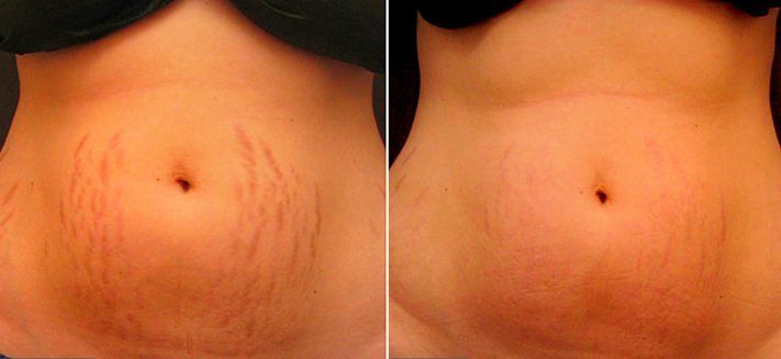 What is the cost of stretch marks removal laser treatment in India