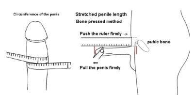 Length bone pressed what is Penis Length