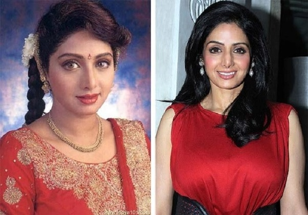 Which Bollywood actors have undergone plastic surgery? - Quora