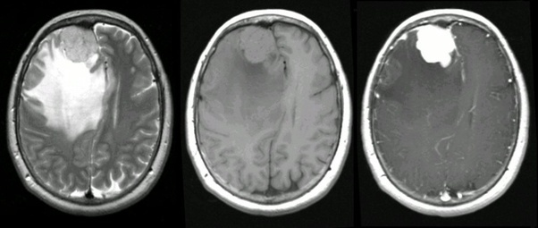 Can you see a brain tumor meningioma without a contrast dye