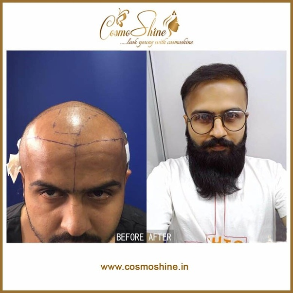 How Much Does It Cost To Get Hair Transplant In India Quora