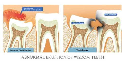 how to tell when your wisdom teeth are coming in
