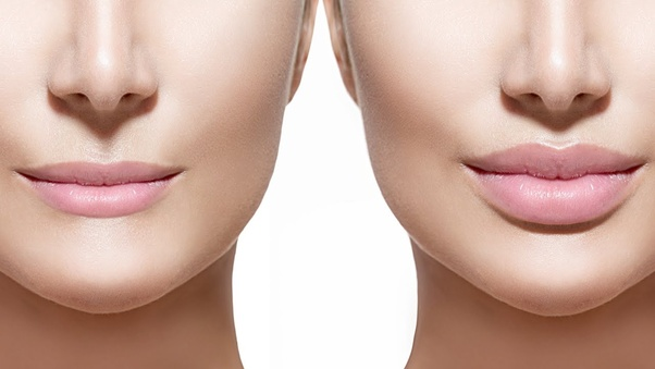 How much does a lip surgery cost in India? - Quora