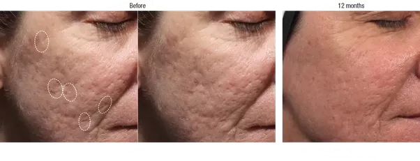How To Remove Holes In My Face Caused By Acne Scars Quora