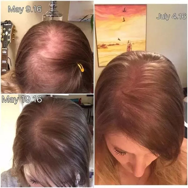 Grow Hair Back And Possibly See Up To 5 New Growths Per Follicle I Am Attaching Some Before After Shots Of Clients Who Have First Hand Results