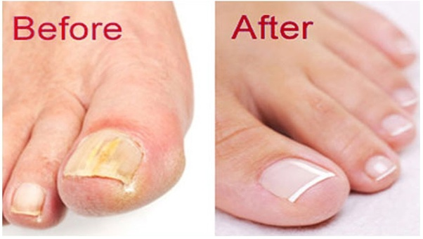 Does Vicks Vaporub really cure toenail fungus? - Quora