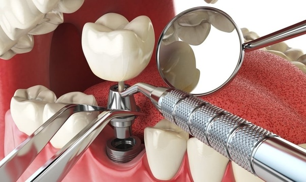 Kết quả hình ảnh cho Placing Dental Implant after dental surgery is teeth