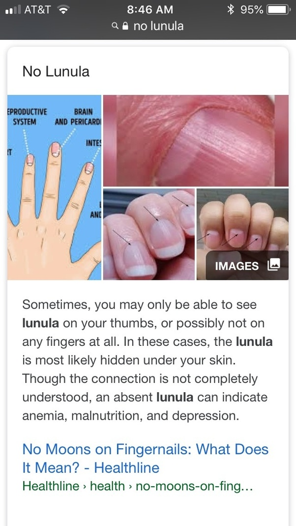 What medical condition is associated with having no cuticle on the ...