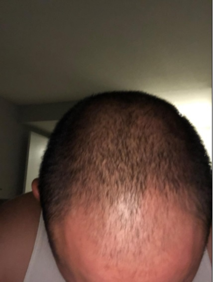 I Have Lost 50 Of My Hair And I Am Only 18 Years Old How Do I Cope With Hair Loss Should I Go Bald Quora