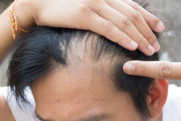 Thinning From Telogen Effluvium Is Usually More Severe At The Part In Hair And Rarely Results Recession Of Hairline