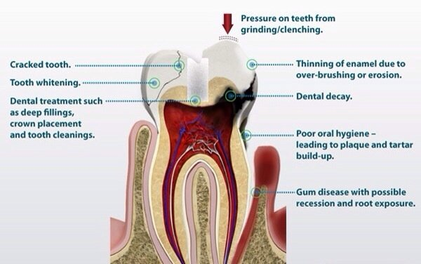 What Does It Mean If Some Of My Teeth Hurt When I Drink Cold Water