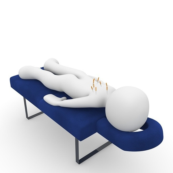 How to get relief from back pain by acupuncture treatment