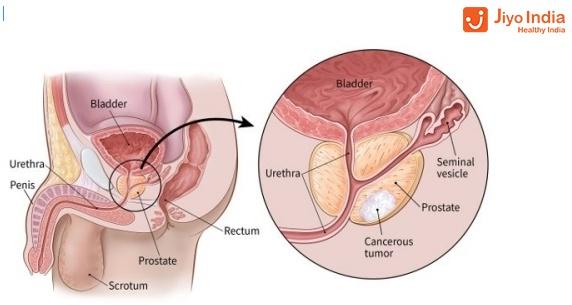 psa bph e cancro alla prostata