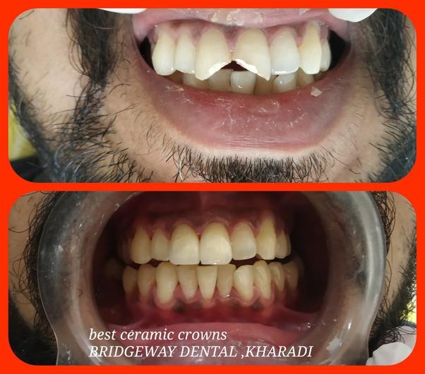 دقيق او حساس تحويل الفهد Tooth Cap Price In Pune Elyfilmsociety Com