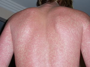 How to get rid of rash on your stomach - Quora