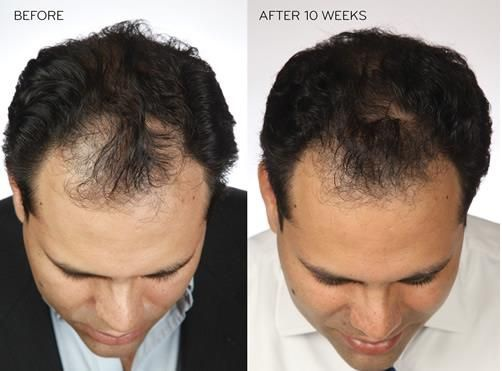 Is there any way to increase hair growth on a bald head? - Quora