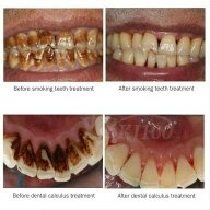 Coffee Stain Removal From Teeth