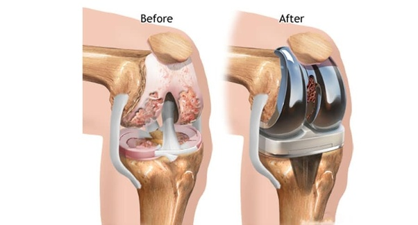 Does Stem Cell Therapy Really Work For Knee Joint Regeneration Quora