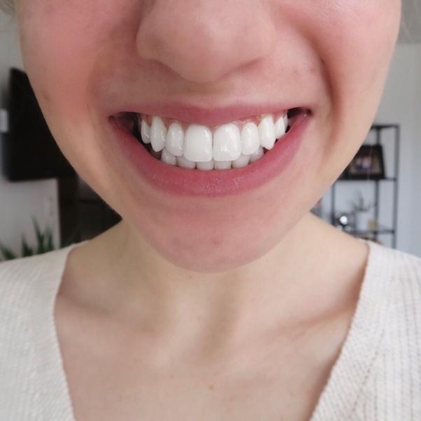 Vertical White Lines On Teeth