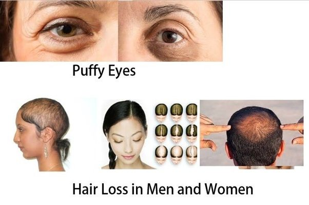 Whta are the causes behind puffy eyes and hair loss? Are the both ...