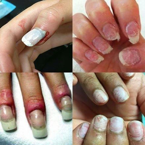 What Are The Drawbacks Of Wearing Acrylic Nails Quora