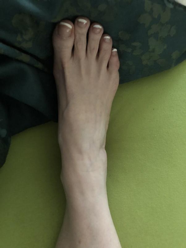 Fußnägel eklige klos