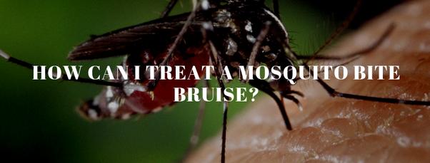 How to treat a mosquito bite bruise - Quora