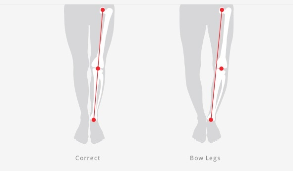 How are bow legs corrected for adults? - Quora