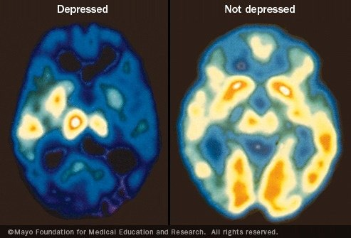 What parts of the brain does depression affect quora people with depression can have trouble remembering things difficulty making decisions planning setting priorities and taking action ccuart Image collections