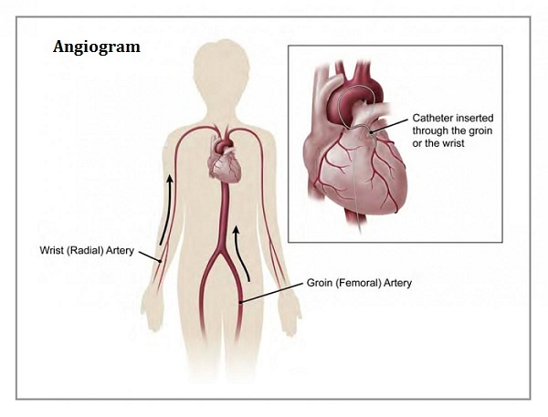 What is the cost of angiogram and angioplasty in India? - Quora