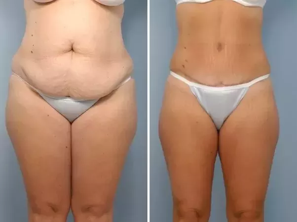 Loose skin after weight loss dating 9