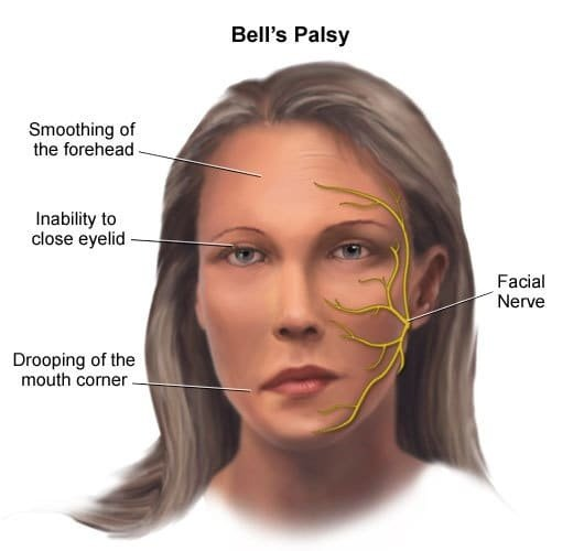 Bells palsy with nausea severe facial pain