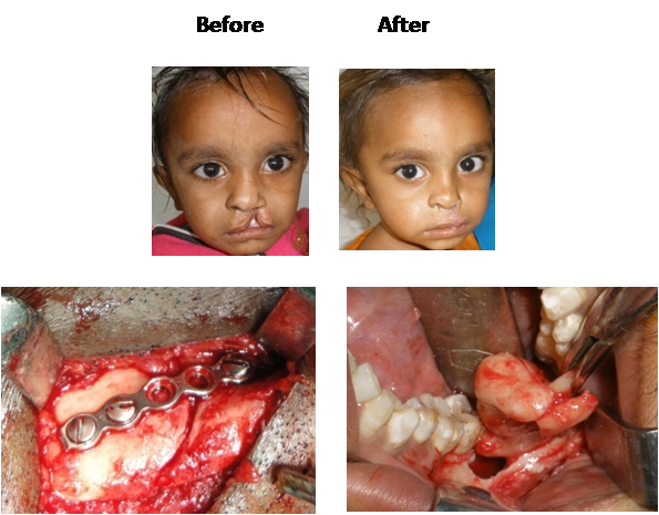 oral and maxofacial surgery