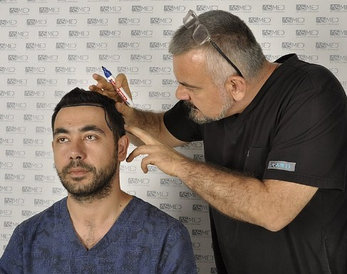 What Are The Best Doctors Clinics Hospitals In Turkey For Hair