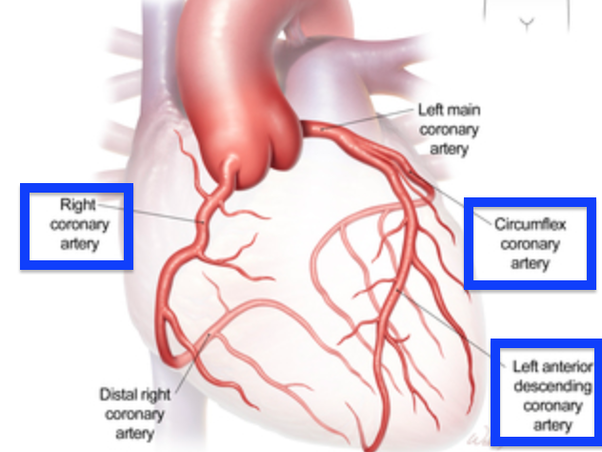 Why do most people die in a third heart attack quora blockage of any of these or its branches result in heart attack myocardial infarction a block in one of the three major arteries create a major massive ccuart Image collections