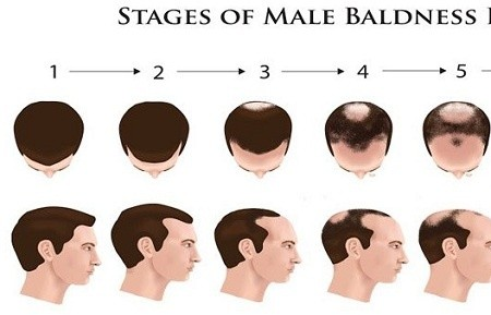 Male Hair Loss Natural Treatment
