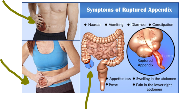 Where is appendix pain? - Quora