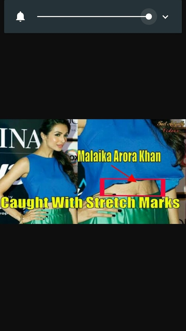 How to get rid of stretch marks permanently - Quora