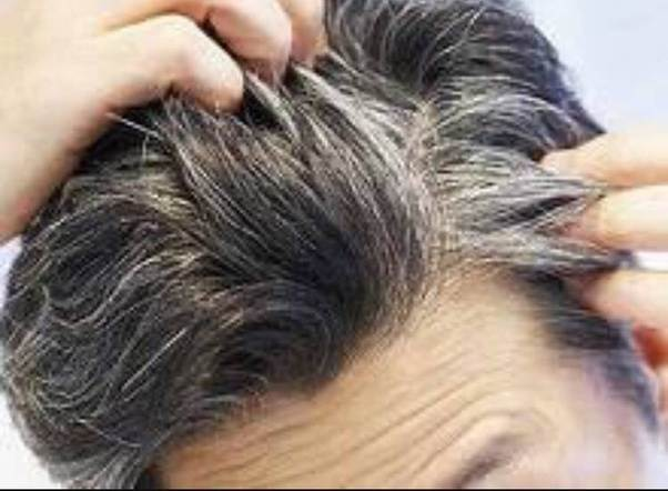 Can Premature Hair Greying Be Reversed Quora