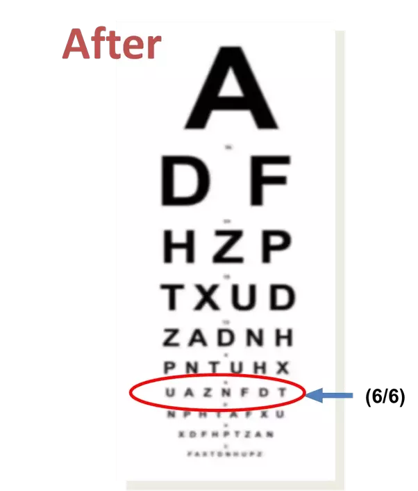What is 66 vision quora this requirement means that you must be able to identify the letters on the 66 2020 in the us line of the vision testing chart snellen chart solutioingenieria Gallery