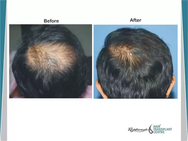 Hair Transplant Performed 1 Month Prior To Regeneration Treatment Results Shown After 7 Months Dr Amiya Prasad