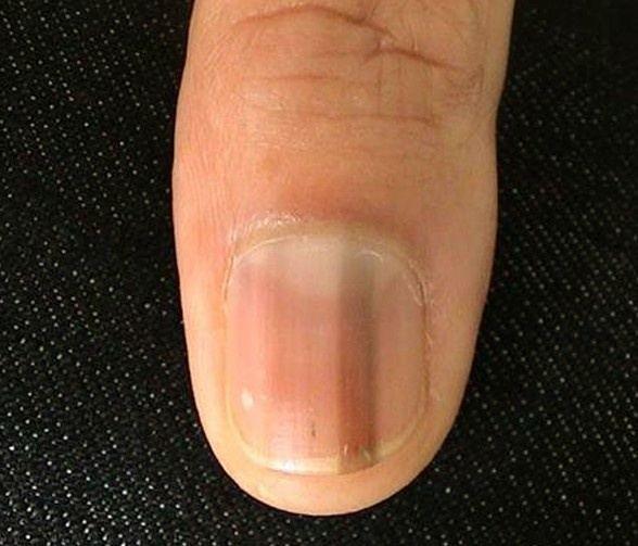 Dark Vertical Lines On Fingernails - Best Nail 2017