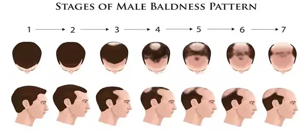 Ways to prevent male pattern baldness