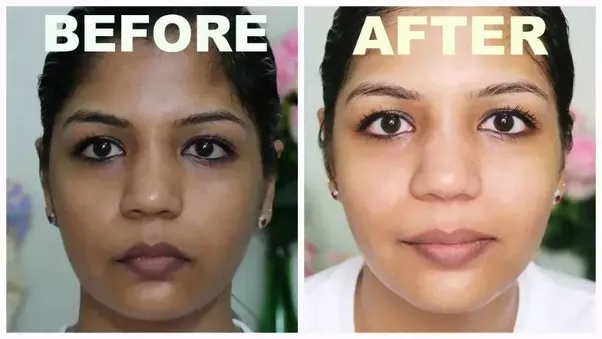 What Is The Best Selling Skin Whitening Cream In China