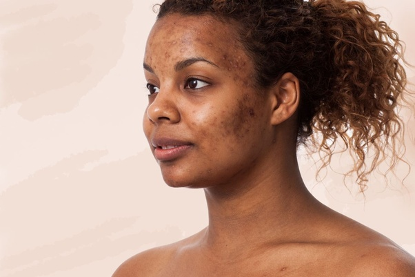 How to get rid of acne scars on African American skin - Quora