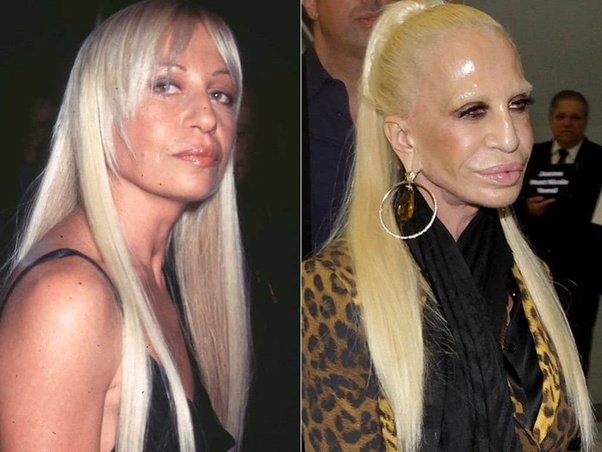 What Is The Worst Example Of Plastic Surgery In Hollywood